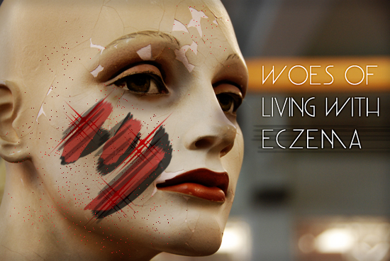 woes_living_with_eczema